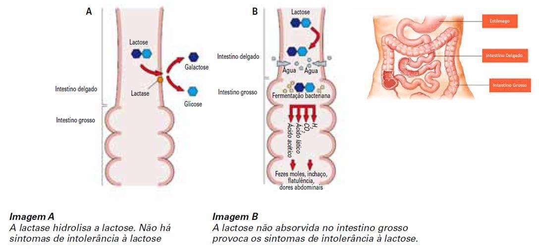 Intolerância à Lactose - Entenda o que é
